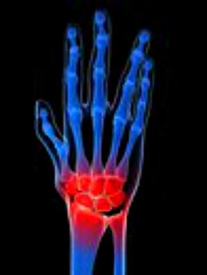 treat arthritis with medicinal herbs