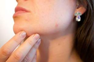 Acne herbal remedy can eradicate acnes.