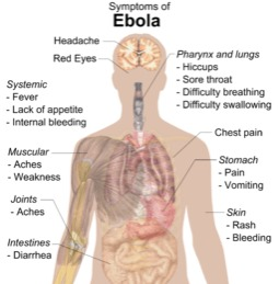 Symtoms of Ebola