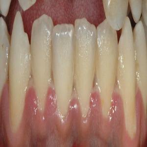 Ulcerative Gingivitis