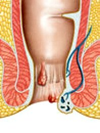 hemorrhoids, treated with medicinal herbs
