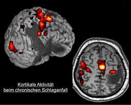 By Dr. C. Grefkes, Uniklinik Köln (Grefkes et al.) [CC-BY-3.0 (http://creativecommons.